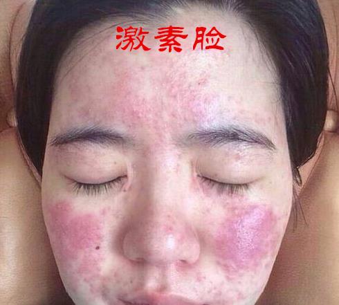 激素脸(激素皮炎)是什么病
