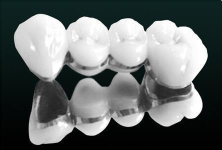 粘烤瓷牙_烤瓷牙真的不好吗,为什么选择种植牙?
