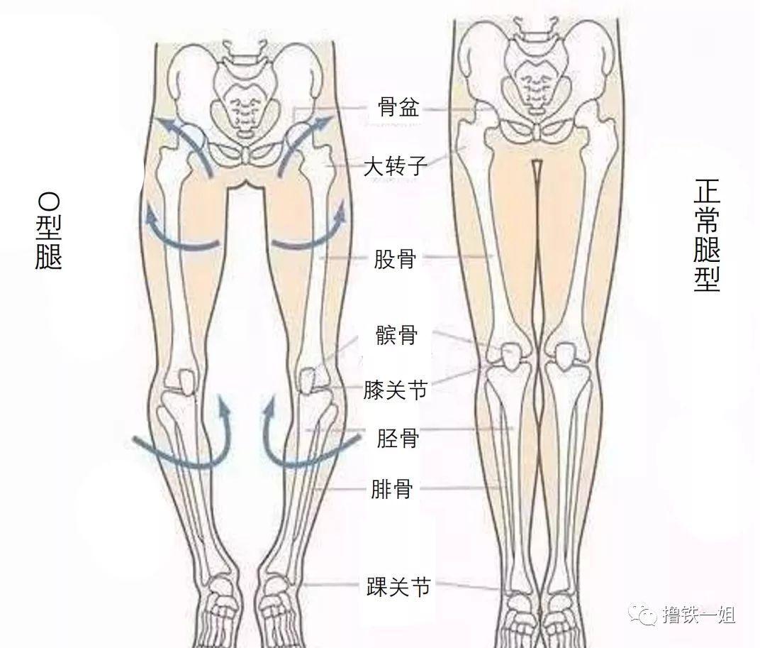股骨柄假体型号