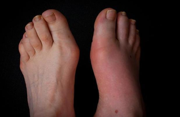 身体出现3个症状,说明已患有痛风,2种食物将尿酸一降