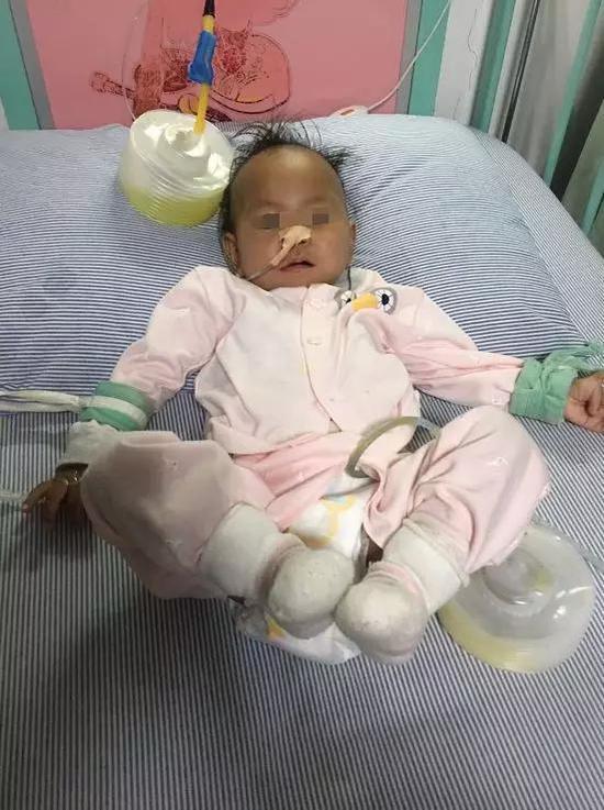 一歲女嬰胃被撐破