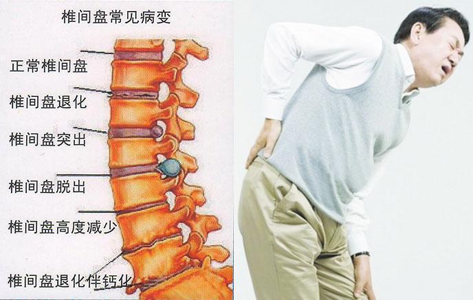 下肢放射性疼痛治療