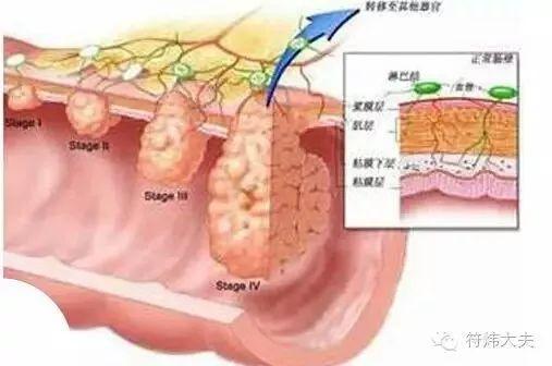 肠胃息肉有什么症状是什么