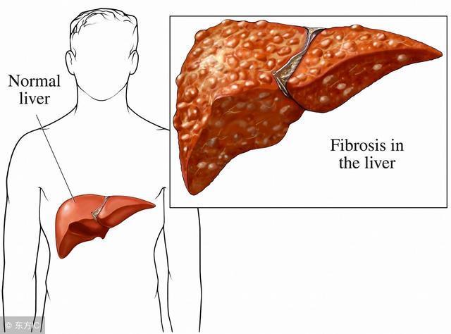 肝上长瘤子有什么症状