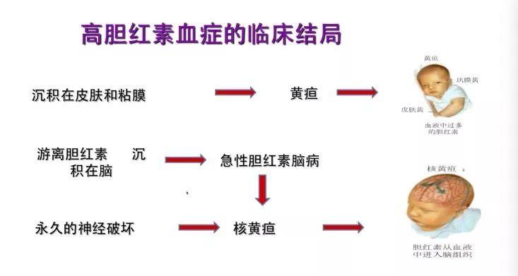 血胆红素偏高的原因_新生儿胆红素代谢_胆红素代谢过程图解_总胆红素偏高是什么原因 ...
