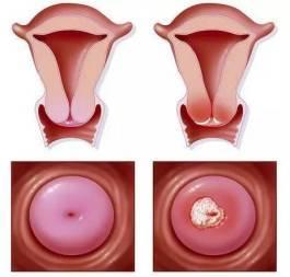 出血是不是宫颈癌_如在性交后出血,可能是患宫颈癌的信号.