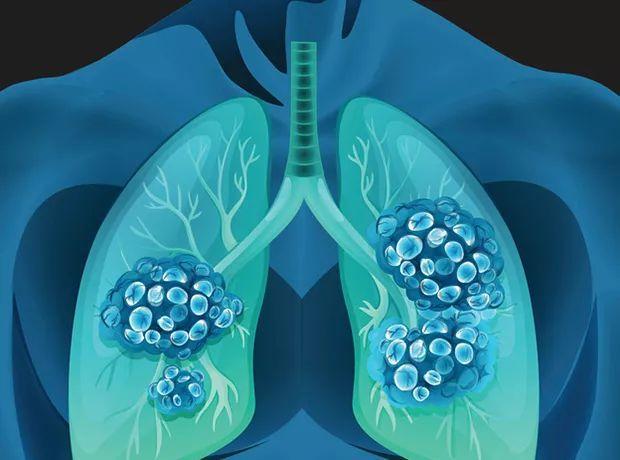 权威解读: 肺癌筛查的利与弊