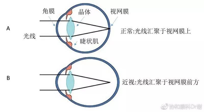 手术治疗近视眼的原理_MCT技术控制近视 非手术治疗近视的首选