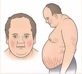受够了满月脸水牛背!怎么能将激素的副作用消掉?图片