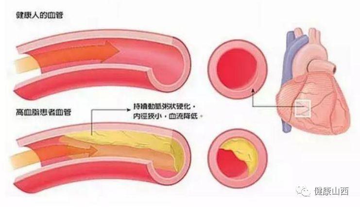 你的血管决定你的寿命