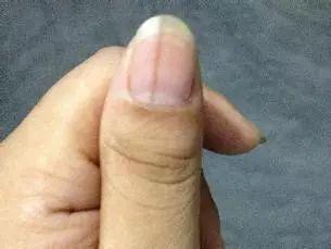 62岁谢奶奶 截指保命 ,指甲上长黑线竟然是癌前病变