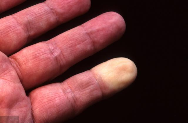 认真提醒中年人,身上若出现这4个症状,说明你离血栓不