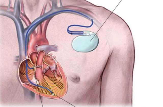 心脏起搏器