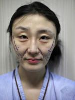 慎点!!割双眼皮,隆鼻等整容手术全过程....看