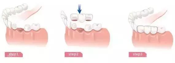 成都口腔科普:做了烤瓷牙,到底还能不能牙齿矫正?