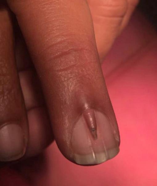 罕见!巴基斯坦男子指甲盖上长出小指甲 全球仅4例