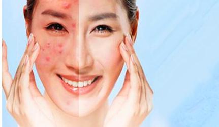 什么原因导致了有这么多的激素脸?能够治好激素脸吗?图片