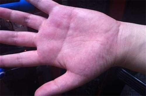 手掌部皮肤发青多是胃肠道疾病,如消化不良,慢性腹泻等;青绿色表示心
