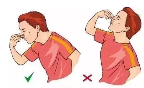 若是外伤后流鼻血,很可能是颅底损伤流出的脑脊液,堵塞鼻子可能导致颅图片