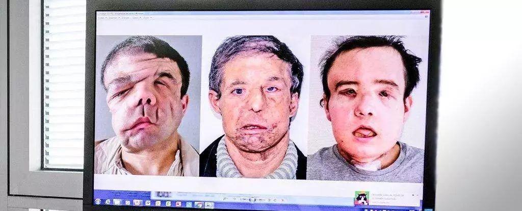 男子两次换脸手术
