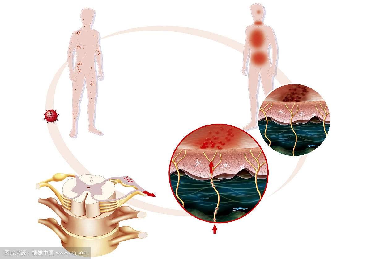 带状疱疹发病率不低,临床表现和治疗方法