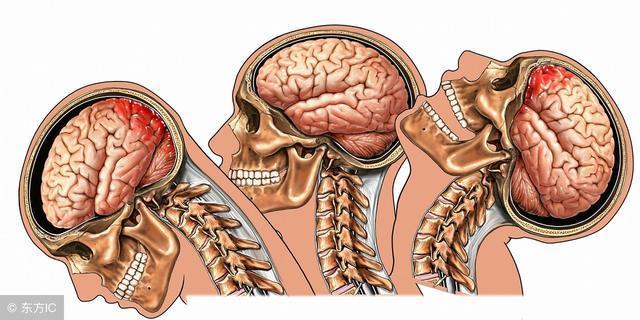 腦挫裂傷出血擴大的危險因素