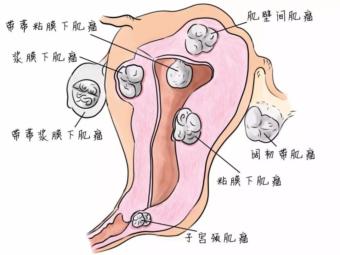 一篇文章足够你了解子宫肌瘤的全貌