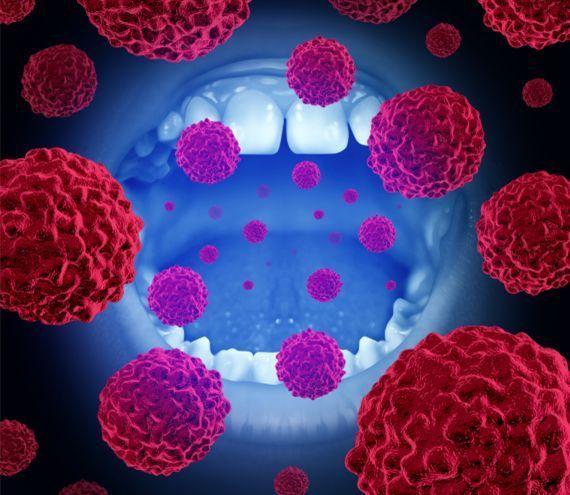 宫颈癌都有哪些症状_感染hpv照片图片大全_uc今日头条新闻网