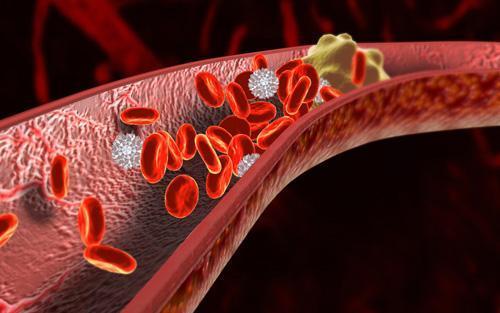 自测血管年龄:超过五项,血管老十岁