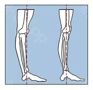 腿长的标准