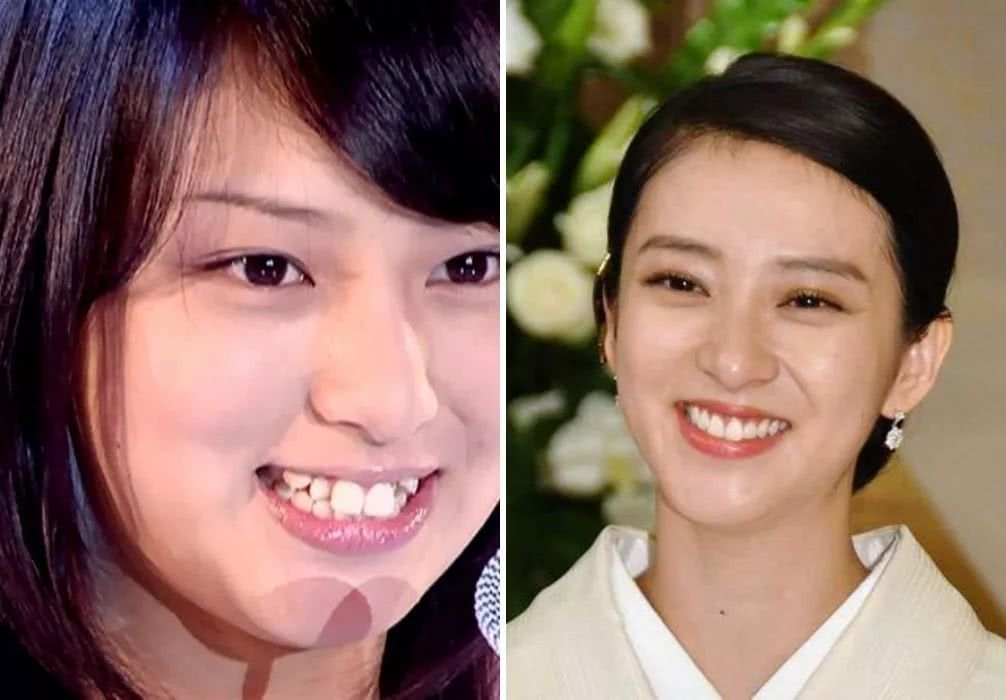 长得像光咲玲奈_比如能年玲奈,她初中前有点龅牙,摘下牙套后,前后像换了个人.