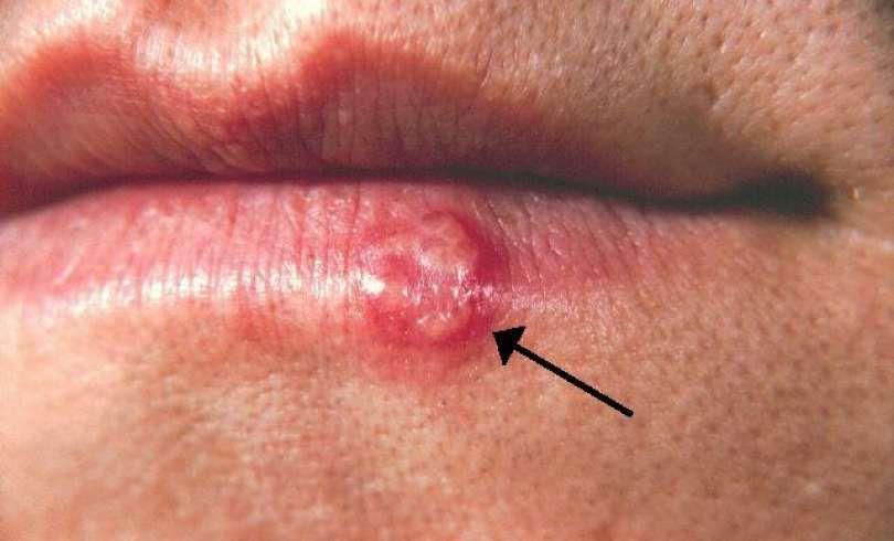 成人口唇疱疹怎么办
