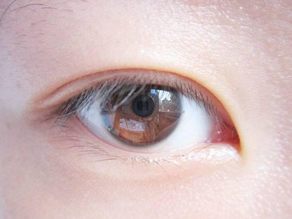 双眼皮三点定位的原理_图:基站\