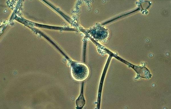 根霉显微镜下手绘图片