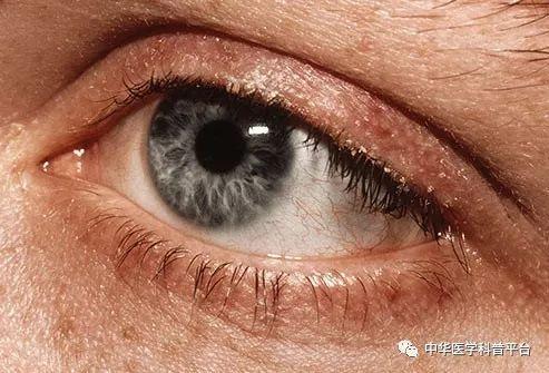 """什么原因造成你的眼睛""""水汪汪"""" - 大山深处 - 大山深处的博客"""