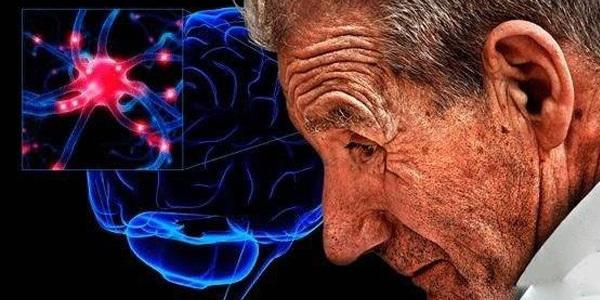 """自然化学:高胆固醇让""""痴呆蛋白""""生成加速20倍"""
