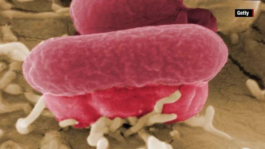 金发人体150第一名_德州出现第一例生菜感染病例,美国爆发2006年以来最严重大肠 ...