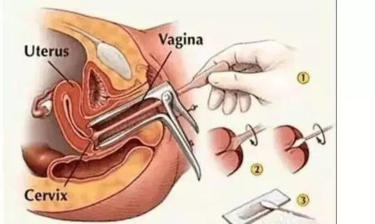 妈妈的阴道�_带妈妈体检,做什么项目?