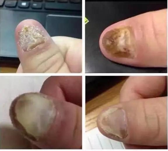 灰指甲复发:灰指甲,终于可以不用再担心复发了!