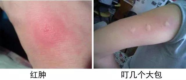 陈乔恩都爱用的驱蚊潮品,有了它,蚊子再也不敢靠近!