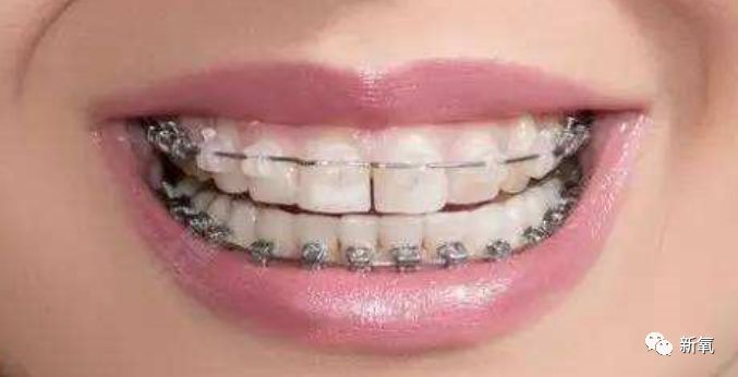 陶瓷自锁牙套_杨幂最想杀的人,可能是自己的牙医!