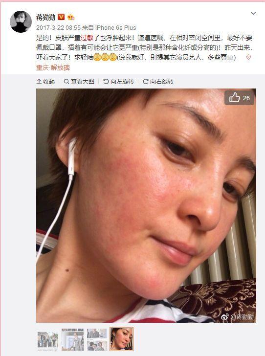 """令人骄傲的""""中国制造""""还不多,但这祛痘药妆肯定算一个!"""