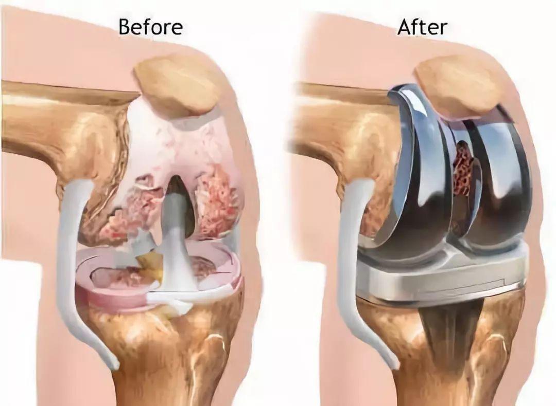 骨关节结核的临床表现有哪些_骨关节结核_健康一线