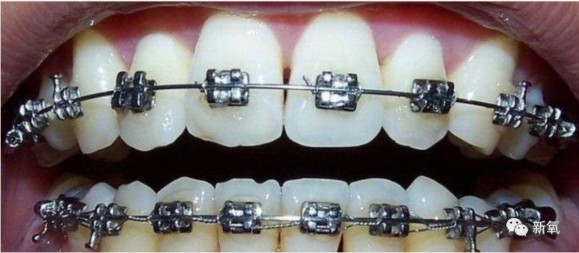自锁牙套和普通牙套_杨幂最想杀的人,可能是自己的牙医!