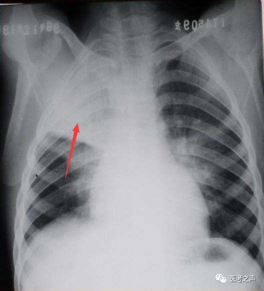 大胆性��f�x�_② 小叶性肺炎