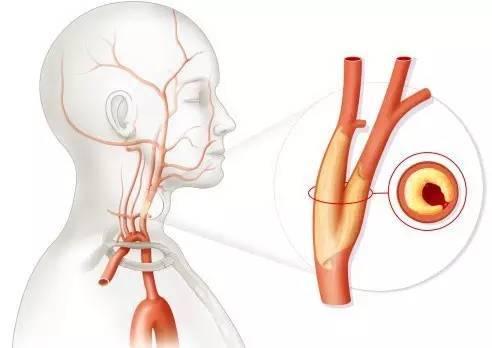 患了颈动脉狭窄怎么办?