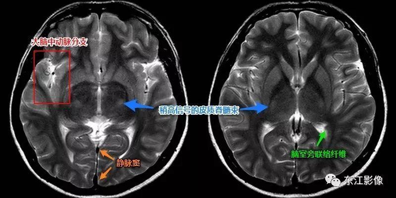 财经 正文  willis环,大脑中动脉分叉部也是脑动脉瘤的好发区域,表现