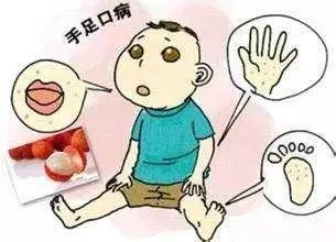 重型手足口病可致死,大理儿科医生教你怎样预防手足口病!