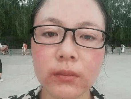 激素脸不适合裸脸,激素脸这样治疗才不会复发图片