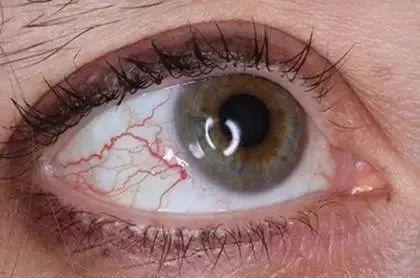 科学说:眼睛出现这些问题,可能是生病的前兆!